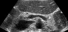 رادیولوژی و سونوگرافی احتیاط کار